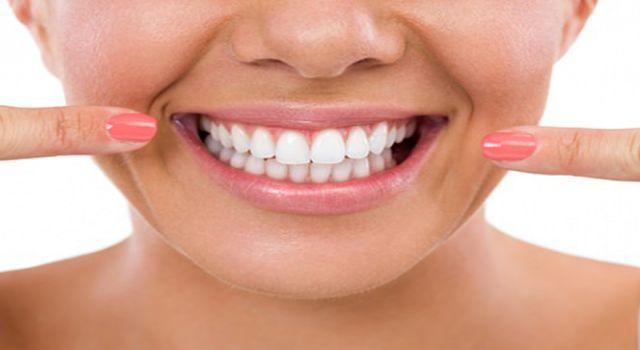 Diş Beyazlatmada Dikkat Edilmesi Gerekenler
