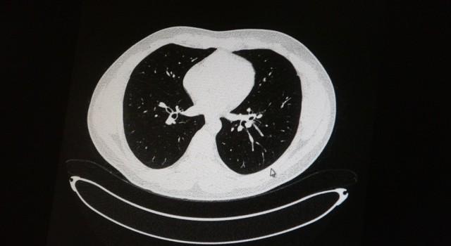 Aşılı ve aşısız olarak koronaya yakalanan 2 gencin akciğer tomografisi korkunç gerçeği gözler önüne serdi